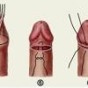 Зачем и почему делают обрезание? Циркумцизия