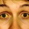 Желтуха - лечение, симптомы, как передается, последствия