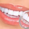 Zoom отбеливание зубов: что это за процедура и как она проводится?